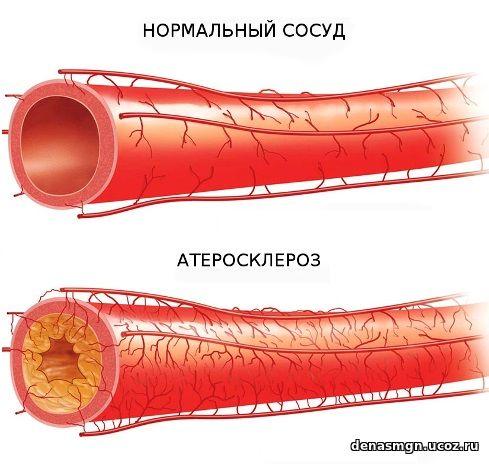 Повышенный холестерин у женщин лечение